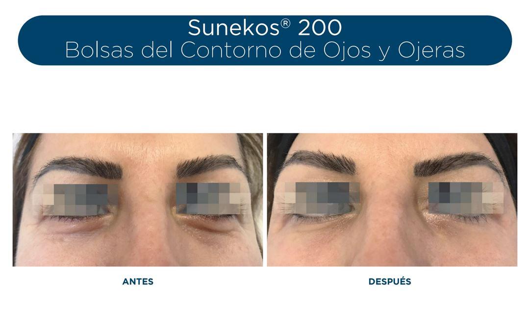 Vídeo de Sunekos®200 en Zona Periocular