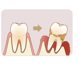 国立市の歯医者いさむ歯科クリニック 歯周病治療 イメージ写真