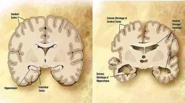 Alzheimer's Disease diagram in brain