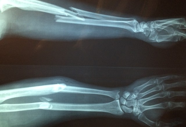 x-rays of broken legs and arms