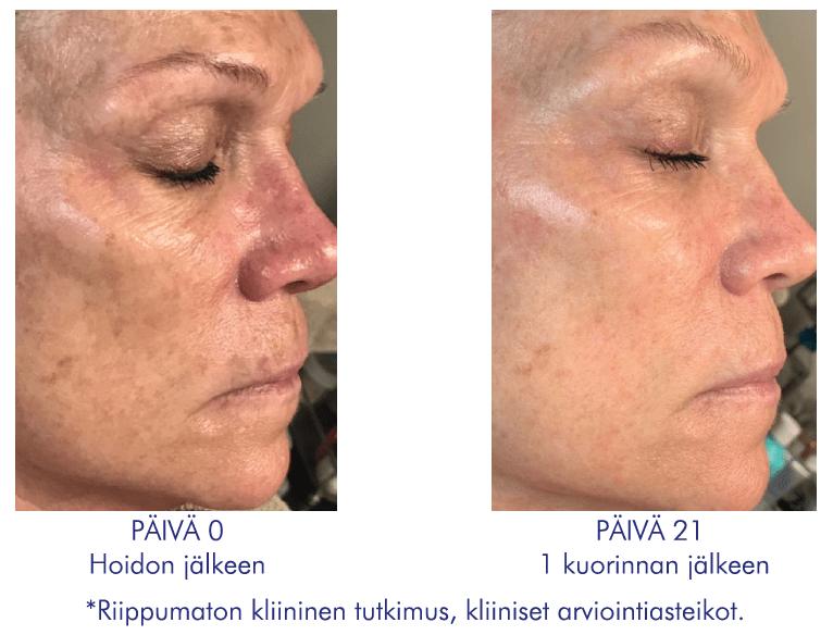 iS Clinical Prodigy Peel Pro P3 Ennen ja jälkeen 1