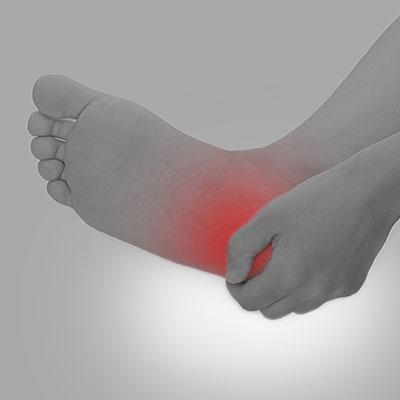 ISEALインソールの効果その4:捻挫の予防