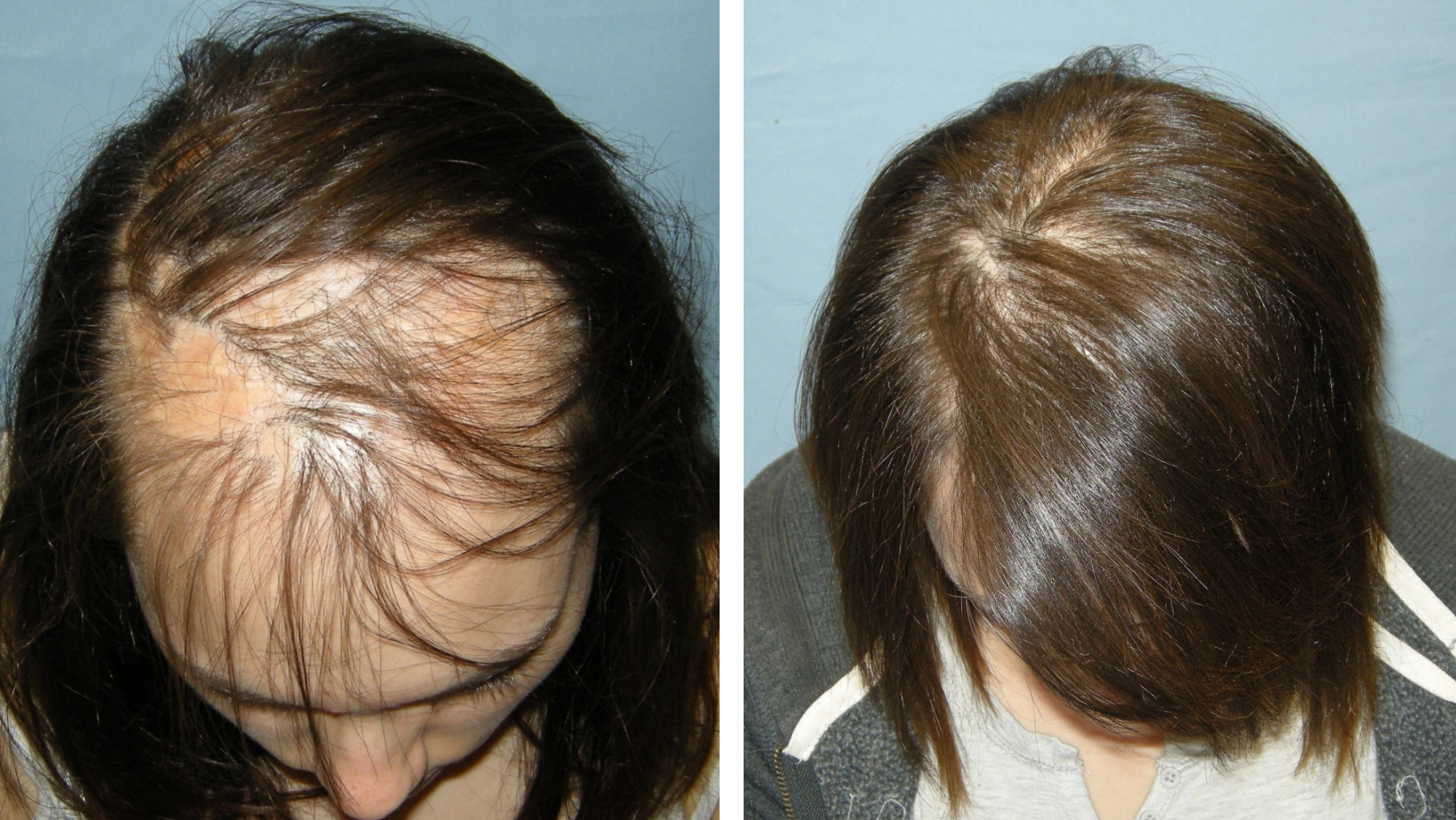 Female Hair Loss Archives Ishrs