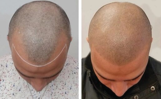 smp-to-FUE-androgenetic-alopecia