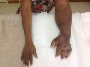 Conditions Treated with Compression Therapy 3
