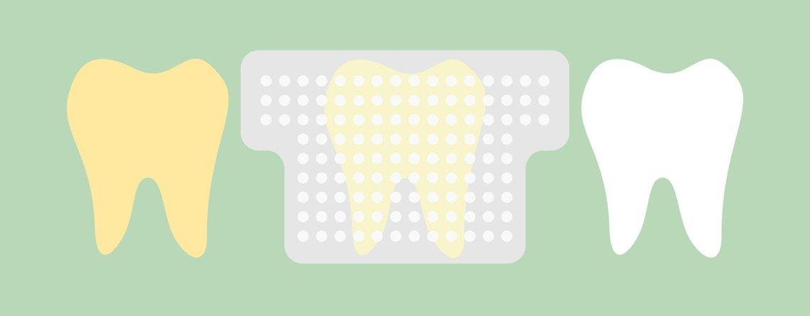 hammaste valgendusplaastrid