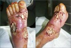 diabetischen Fuß 2