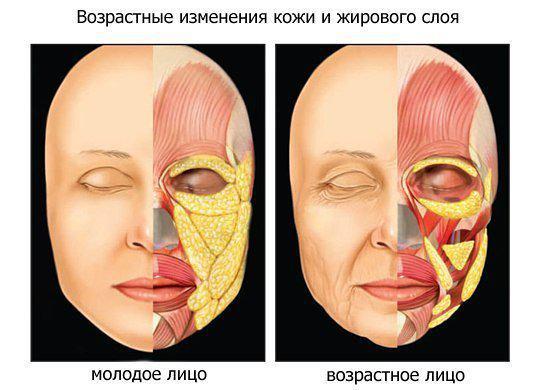 image2-52 | Типы старения лица: как ты будешь выглядеть?