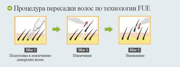 image3-45 | Советы врача-трихолога: как остановить выпадение волос!