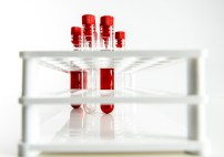 Blood Sampling Tubes