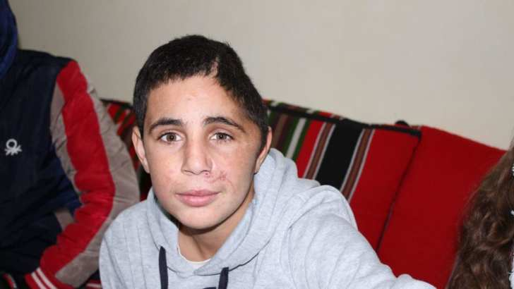 Israel detains Palestinian teen with severe head injury, AGAIN