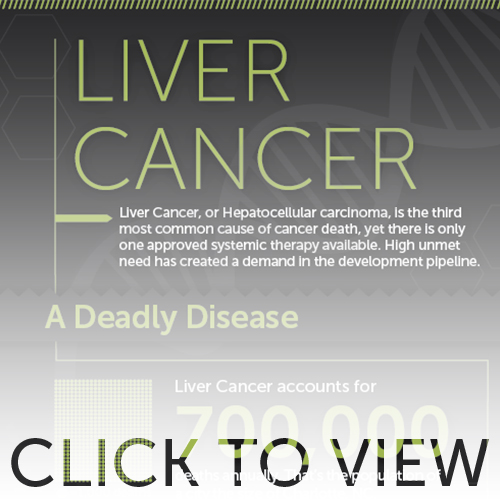 Preview image for Liver Cancer infographic
