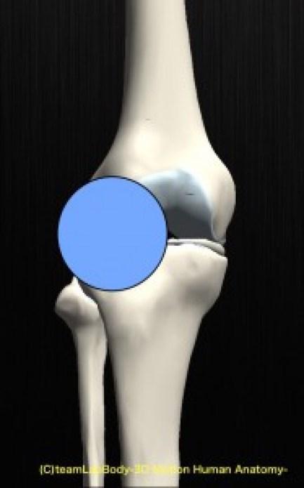 膝蓋骨脱臼