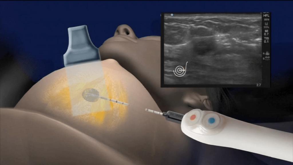 IceCure – процедура замораживания опухоли