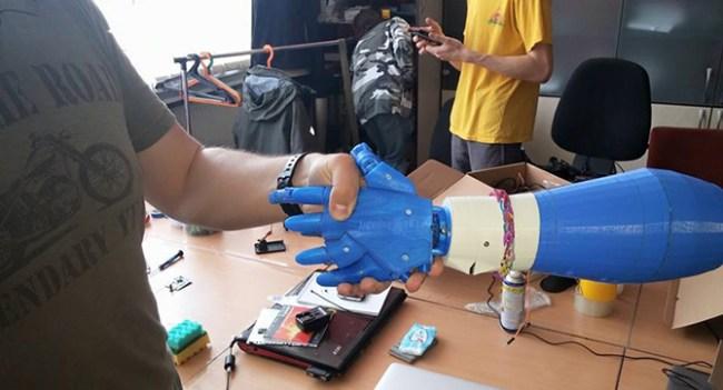 В Украине разрабатывают протез руки, управлять которым можно будет движениями мышц