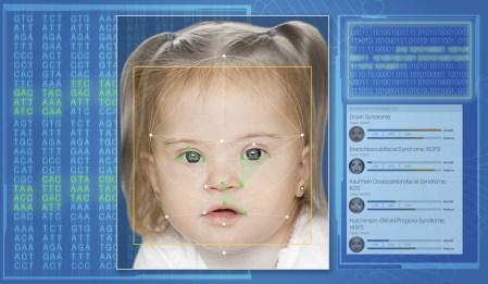 Израильские ученые представили приложение Face2Gene, способное распознать по лицу пациента редкое наследственное заболевание