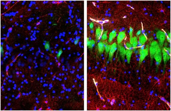 Ученые с помощью системы жизнеобеспечения восстановили некоторые функции мозга свиньи через четыре часа после смерти