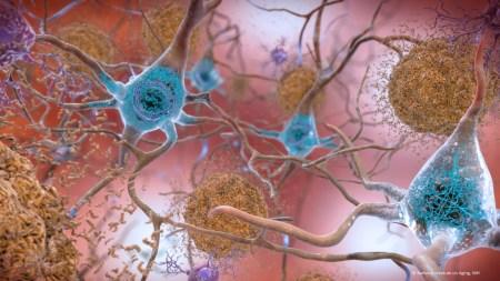 Biogen разработала новый перспективный препарат против болезни Альцгеймера