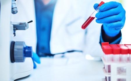 Новый анализ крови позволит прогнозировать больше заболеваний с помощью всего лишь одного образца - ITC.ua