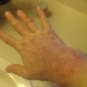 These are my hands after I took a bath and all the dead skin flaked off.