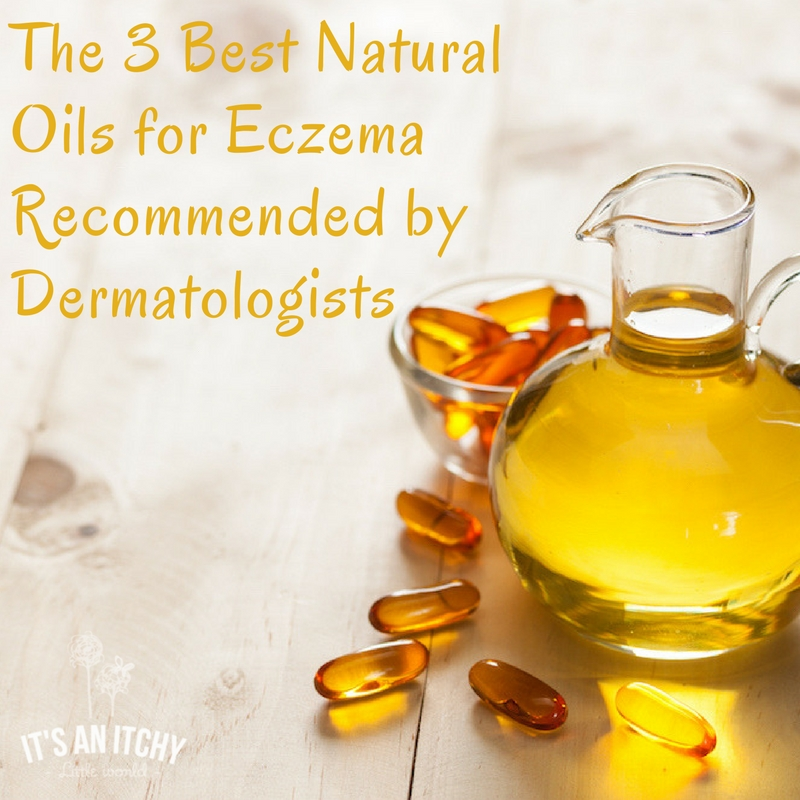 Natural Remedies For Eczema To Soothe Your Itchy Little