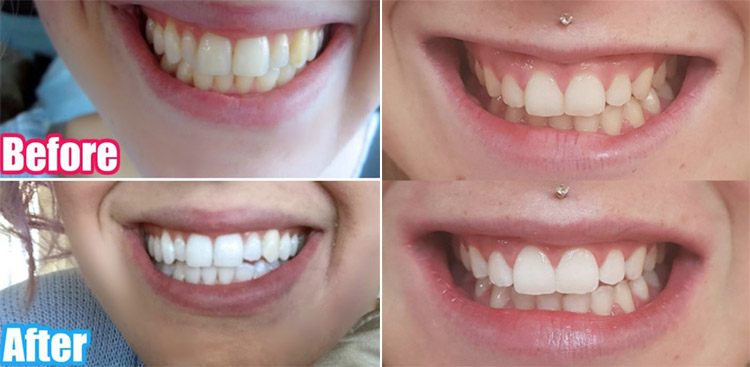 snow teeth whitening before and after