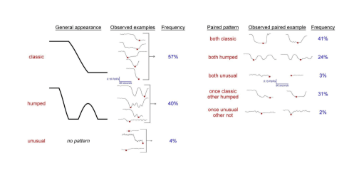 examples of different sparklines