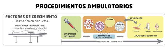 C2.1-PROCEDIMIENTOS AMBULATORIOS-PRP