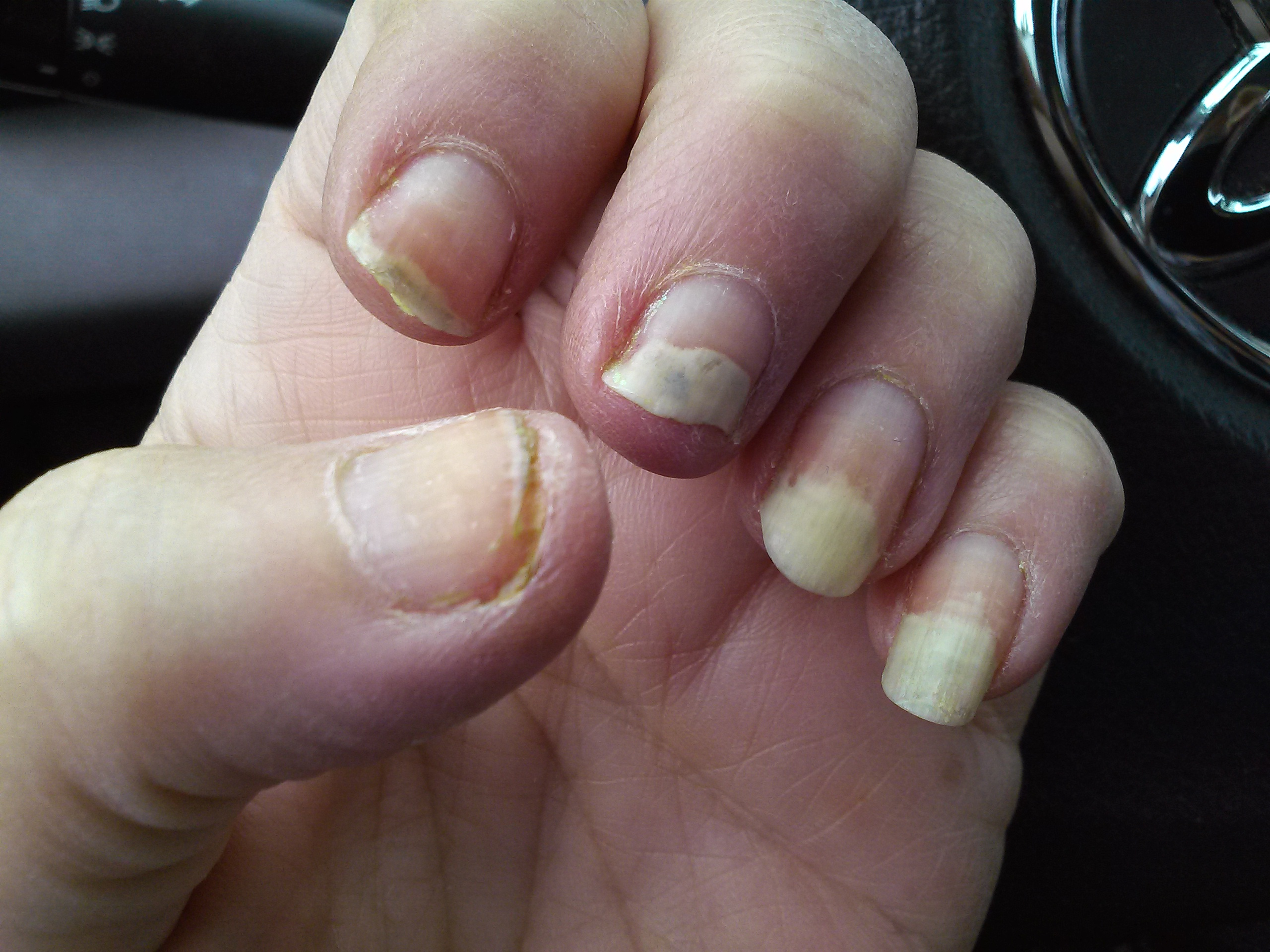 Fingernail Cancer