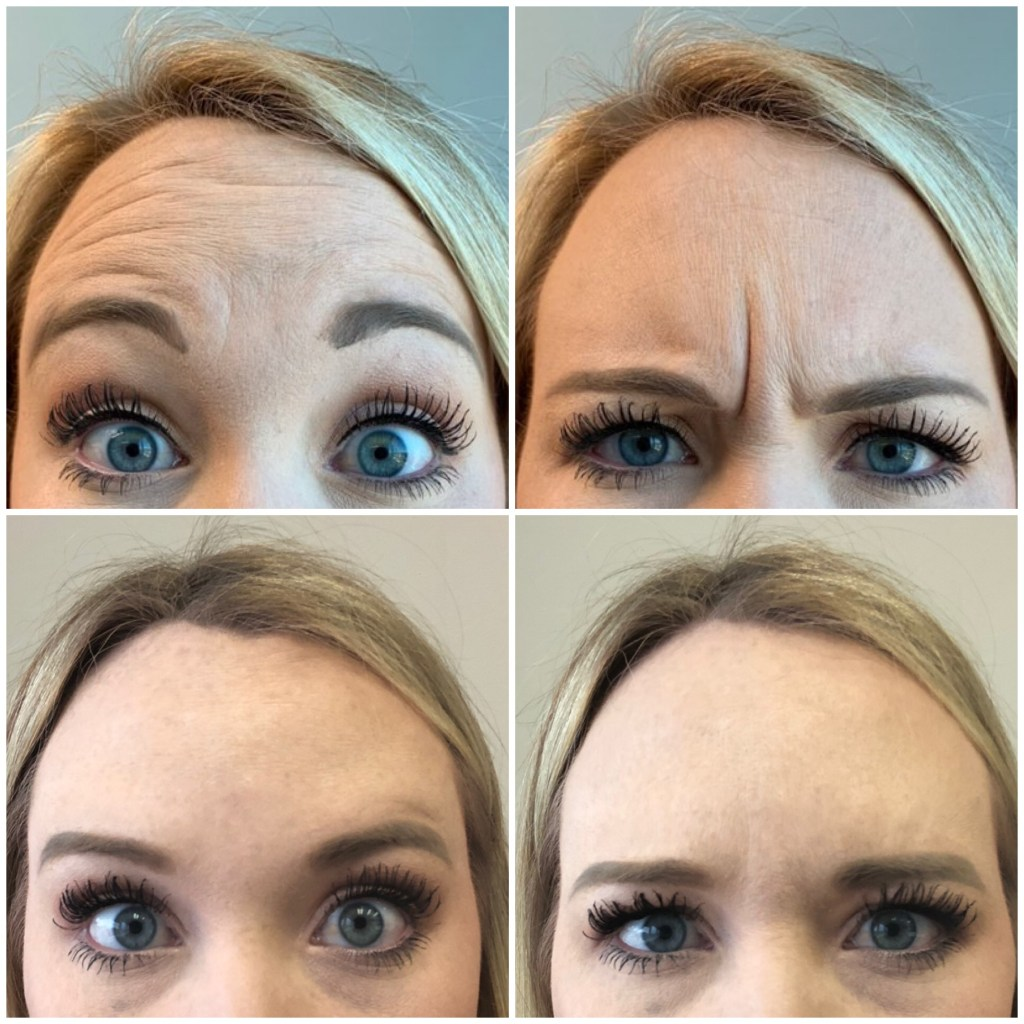 My First Experience with Botox (WITH RESULTS)