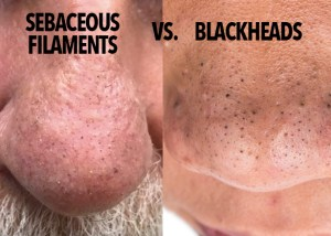 Do You Want To Know How to get rid of sebaceous filaments - Its