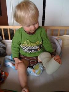 E-toddler-in-leg-cast