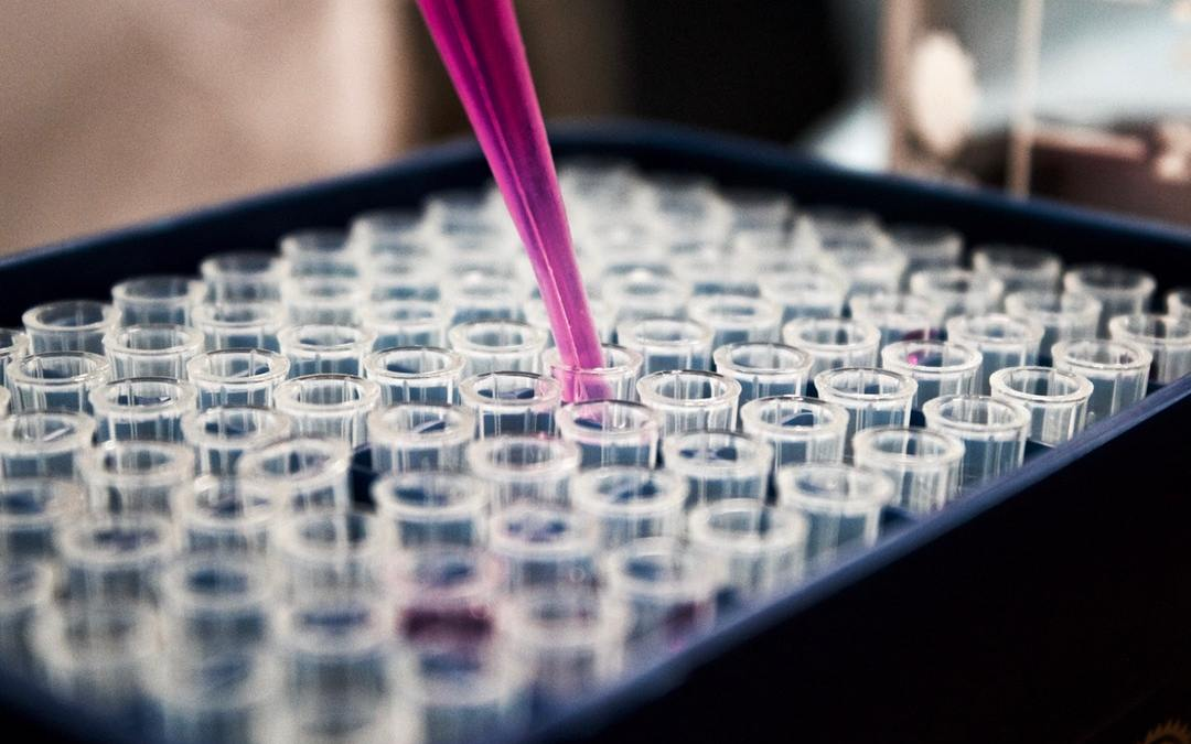 An Overview of Protein Assay Methods