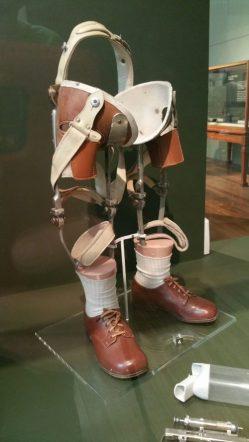 We leerden ook van alles over medische toestanden door de jaren heen. Je zou in 1971 maar je benen missen...