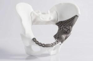 Reconstrucción huesos 3d impresión