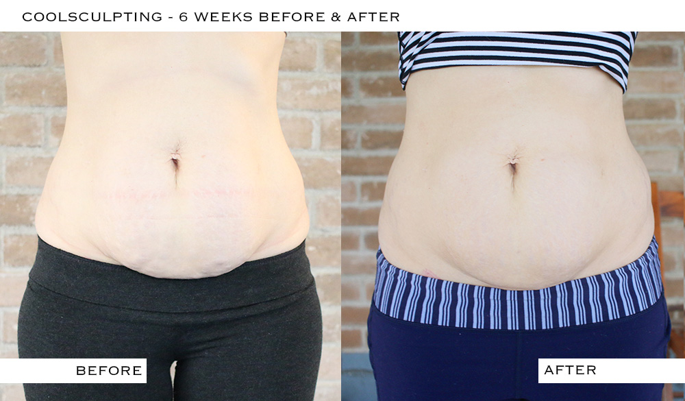 coolsculpting_6weeks
