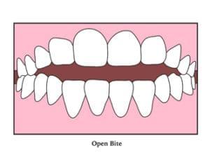 orthodontist near me orthodontics near me braces near me invisalign near me best orthodontist near me braces dentist near me pediatric orthodontist near me affordable braces near me orthodontic offices near me dentist orthodontist near me childrens orthodontist near me professional teeth whitening near me teeth cleaning near me