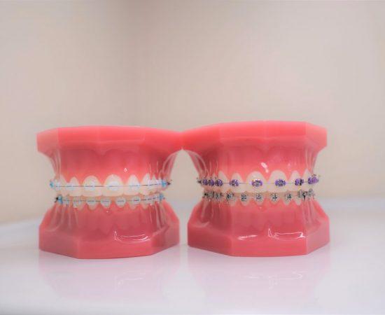orthodontic-appliance-for-overbite