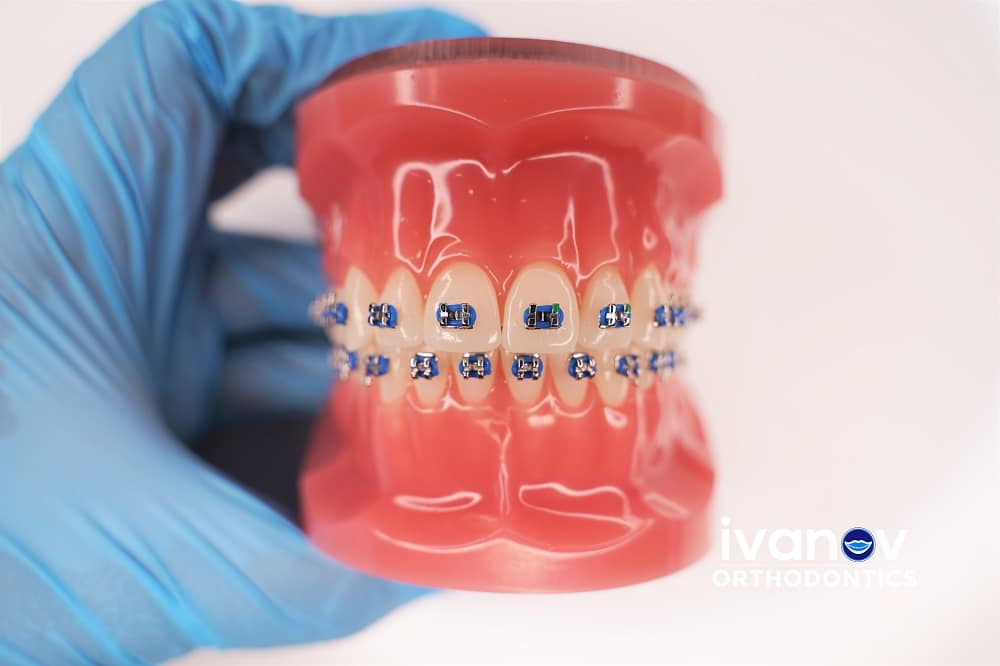 blue-braces-at-ivanov-orthodontic-experts
