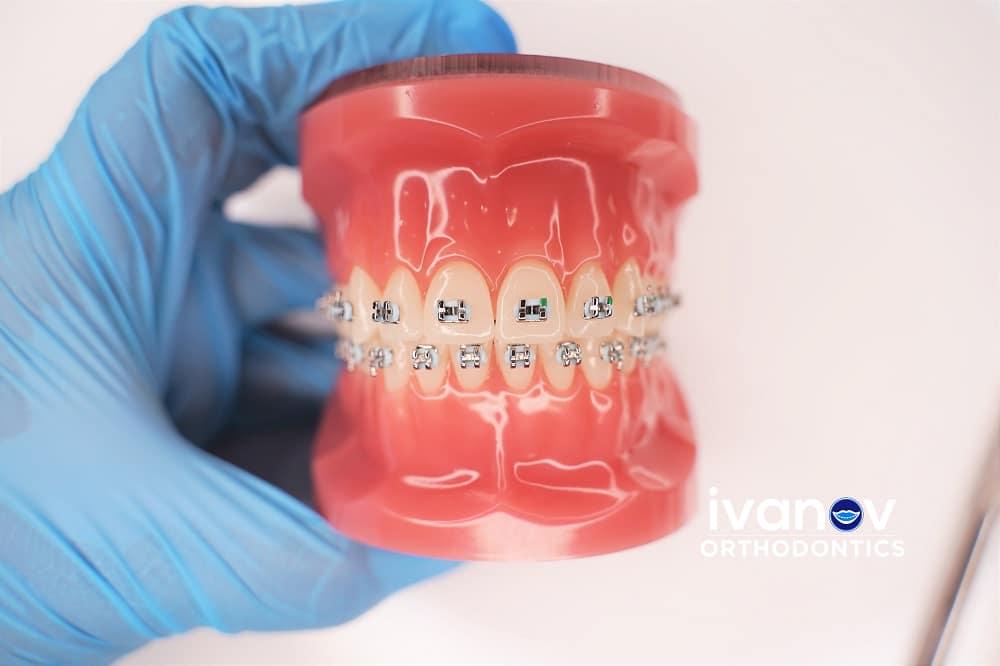 light-blue-braces-at-ivanov-orthodontic-experts