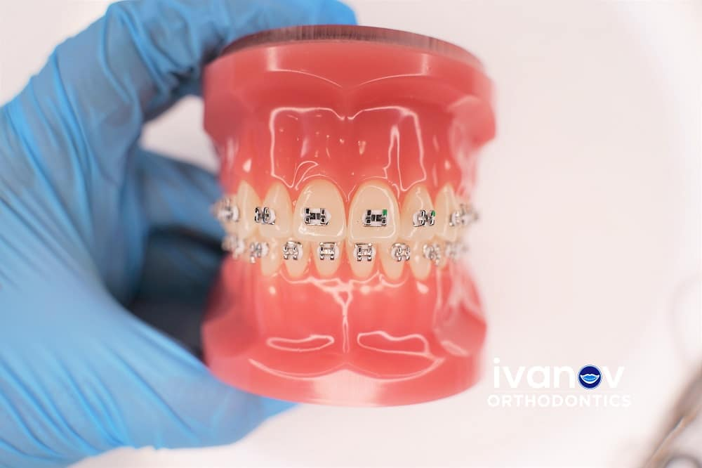 white-braces-at-ivanov-orthodontic-experts