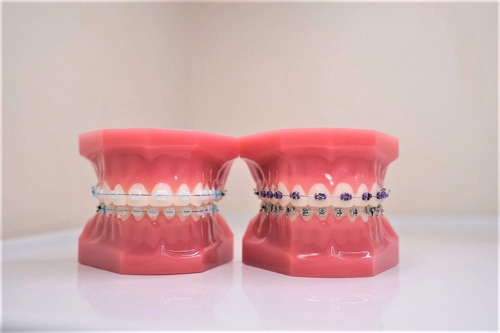 clear-ceramic-porcelain-braces-vs-metal-braces