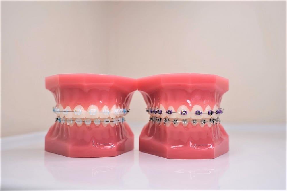 clear-ceramic-porcelain-braces-vs-metal-braces