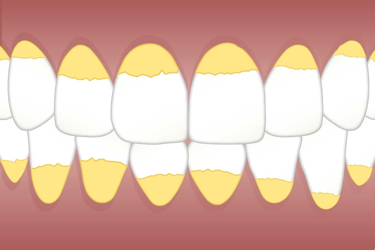 dental-plaque-calculus-tartar
