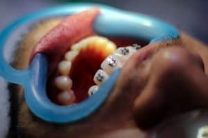 best-orthodontist