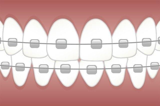 orthodontist-near-me-for-braces