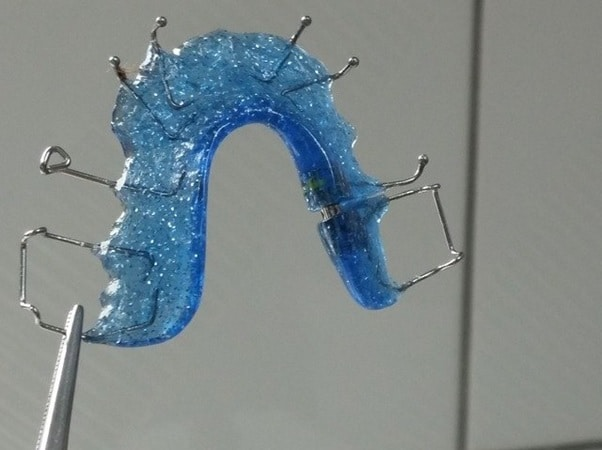 retainers-cost