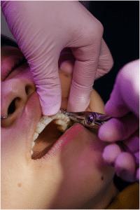 How to remove braces