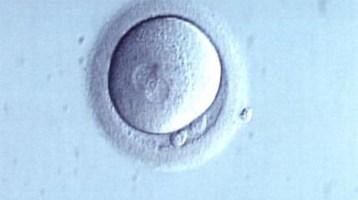 Μέχρι ποιά ηλικία θα πρέπει να περιμένει μια γυναίκα για να κρυοσυντηρήσει τα ωάρια της?