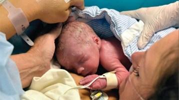 Γεννήθηκε το πρώτο μωρό μετά από μεταμόσχευση μήτρας